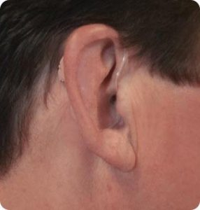 hd210 hearing aid