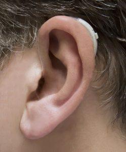 hd400 hearing aid